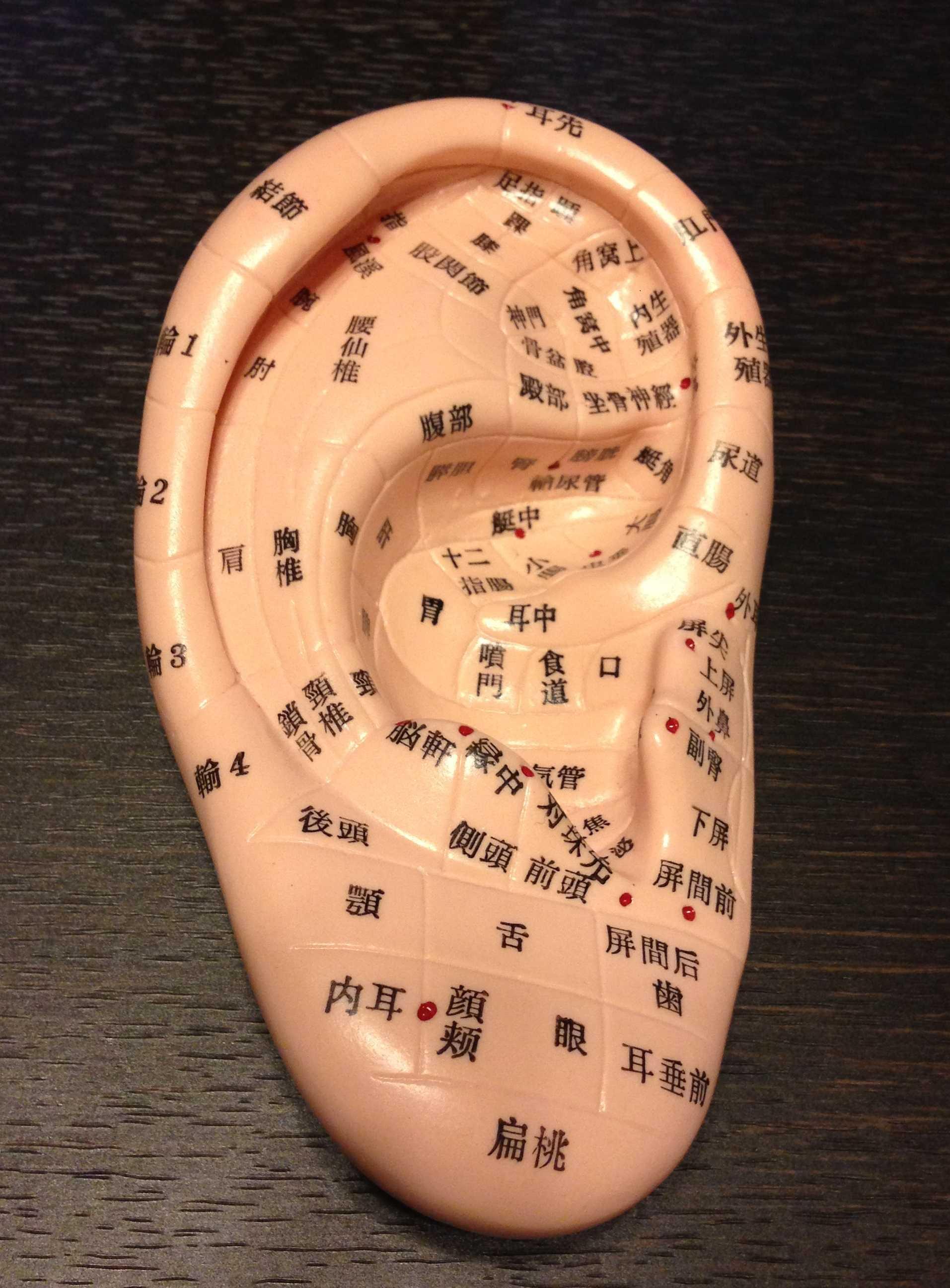 耳ヨガで眼精疲労解消 |                         美骨 美ボディ 美フォルム 日本橋 KIZUNA鍼灸整骨院|東京駅・中央区・日本橋駅・八重洲         耳ヨガで眼精疲労解消